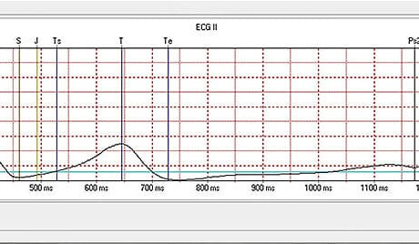 MDE GmbH - Zebrafish Systems - Averaged ECG Analysis From Cycles Selected By The User