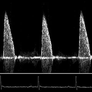 Doppler Flow Velocity Waveform